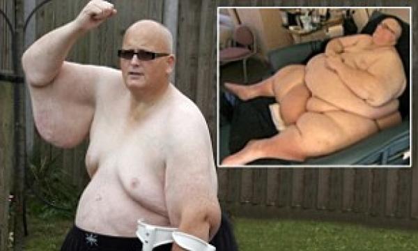 Bajó 286 kilos y ya no es el hombre más gordo del mundo