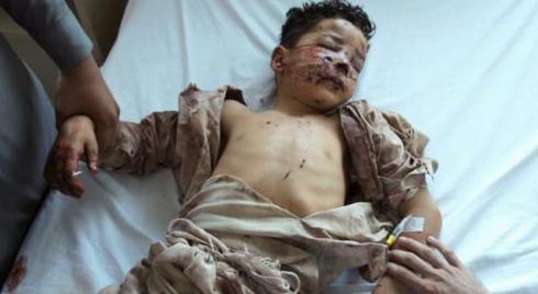 Mueren 143 y 156 personas heridas al explotar camión cisterna en Pakistan