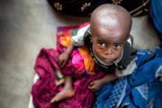 Unos 7,7 millones de personas sufren hambre en la República Democrática del Congo